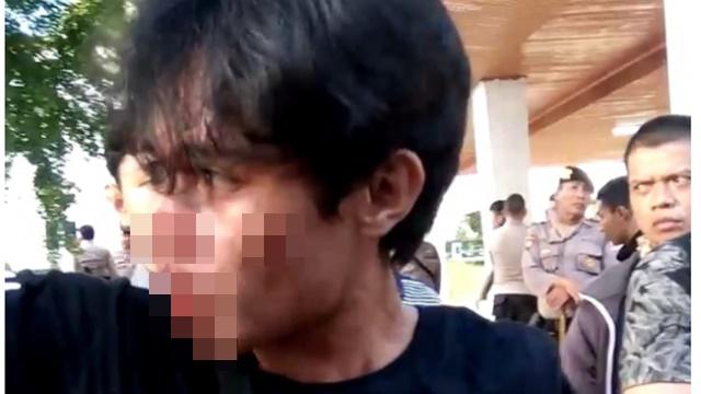 Demo Kebijakan Jokowi, Kader HMI Kendari Dipukul Hingga Giginya Copot