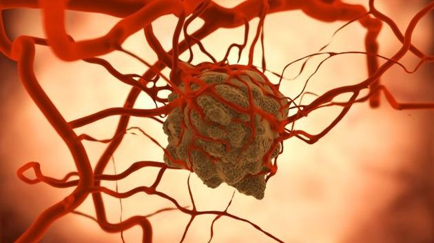 Cancerous Brain Tumor