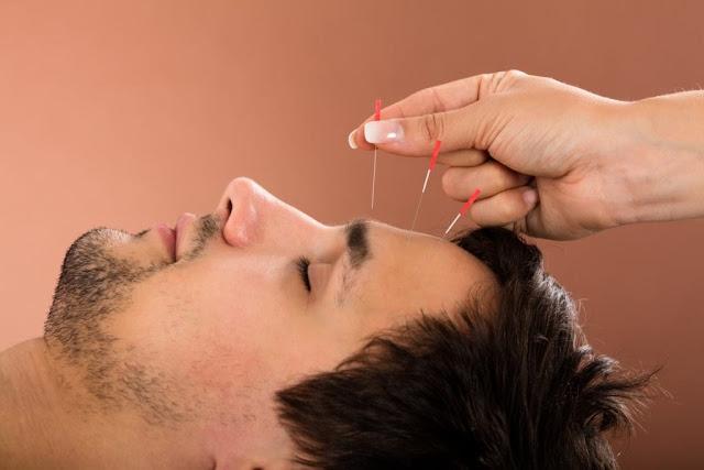 Akupunktur Cinsellik