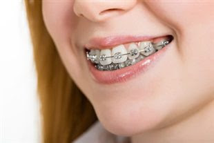 Quels risques avec l'orthodontie?