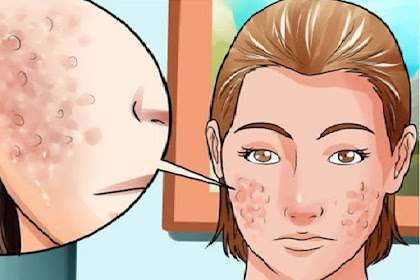 How To Get Rid Of Acne Free