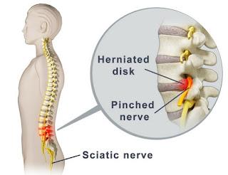 Pijat refleksi untuk mengatasi saraf terjepit (pinched nerve)