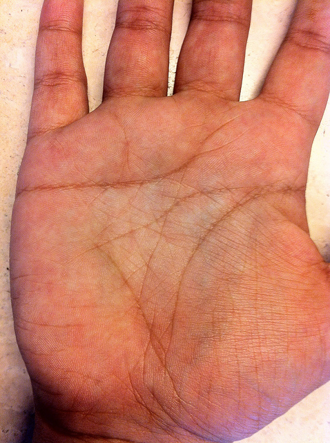 Sign Of Bankruptcy In Palmistry