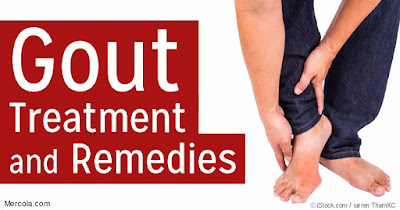 Vivix bantu pesakit gout tidak bergantung kepada ubat tahan sakit.