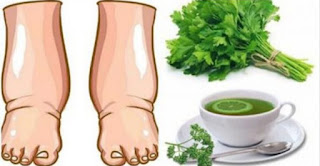 Lemon Parsley Tea To Relieve Swollen Legs