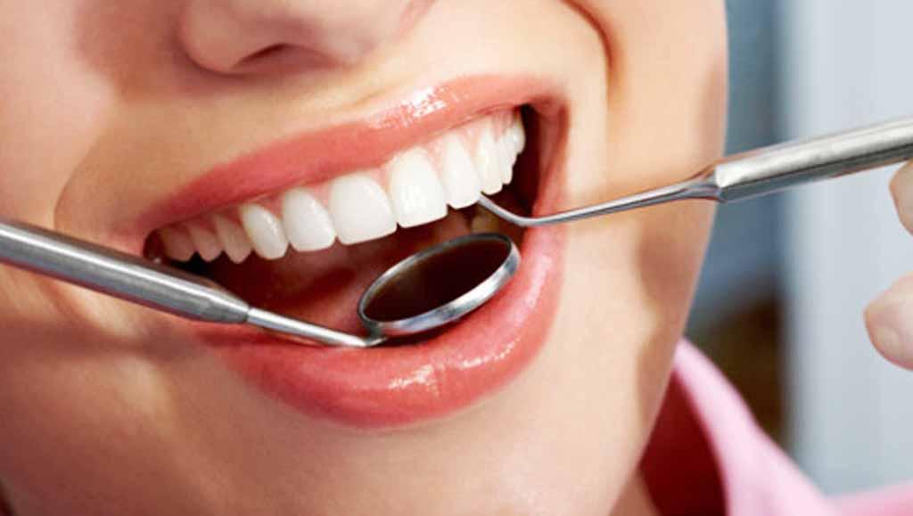 3 Cara Paling Ampuh Menjaga Kesehatan dan Kebersihan Gigi