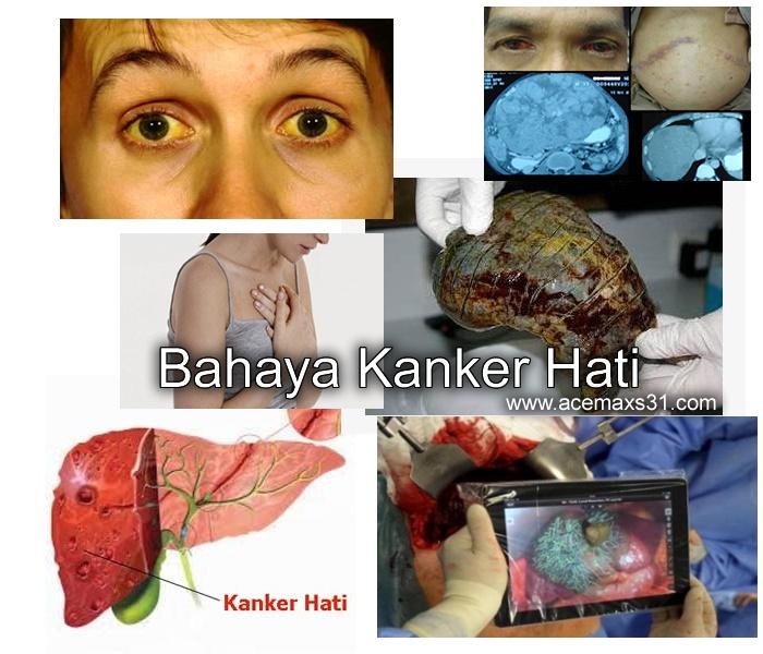www.KlinikSinshePhan.com: Kanker Hati, Sulit dihindari ...