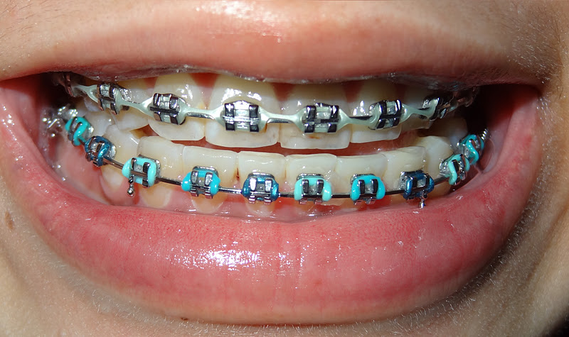 Benefits of Silver Braces. While there are many different and new options for braces these days, many people still go back to the basics with the original silver laroncauskimmor.gqr: Dr. Nick Savastano.