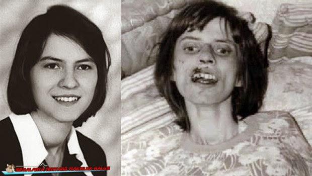 Gadis Anneliese Michel, Mati Karena Kesurupan