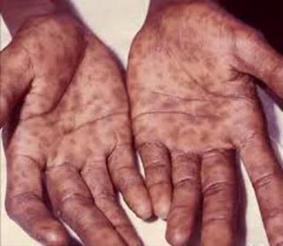 Penyakit Sifilis Disebabkan Oleh  dans sipilis images_fo48vr