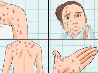 HIV Rash Signs in Females