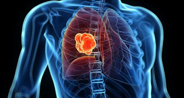 Akciğerde Lezyon Görülmesi