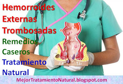 hemorroides-externas-trombosadas-remedios-caseros-tratamiento-natural