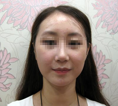 짱이뻐! - The Result Of Plastic Surgery Makes Me Satisfied And Confident