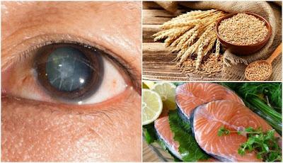 Réduire le risque de cataracte