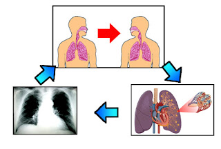 Nursing Diagnosis Knowledge Deficit related to Tuberculosis
