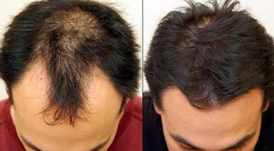 زراعة الشعر للشباب في تركيا