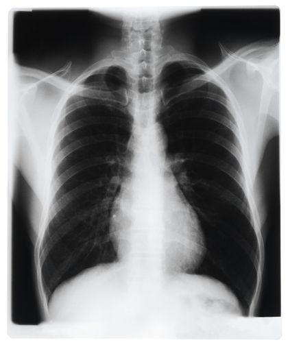 beginnende lungenentzündung bei erwachsenen