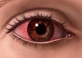Inilah Penyakit Mata yang Sering Terjadi pada Masyarakat Indonesia