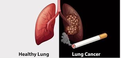 Tanda-tanda Kanker paru-paru