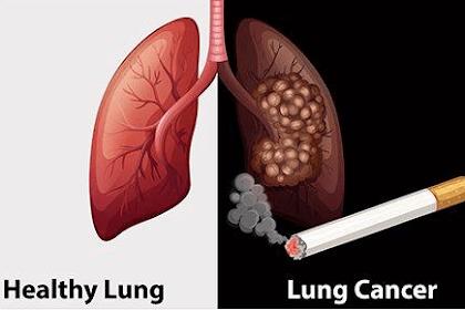 Tanda, gejala dan pengobatan Kanker paru-paru