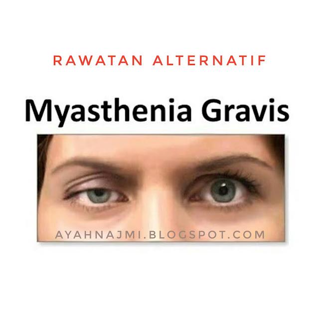 Rawatan Alternatif Myasthenia Gravis Dengan Sirap Ajaib