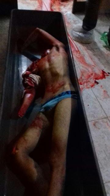 IMAGENS FORTES - Homem é decapitado e esquartejado após ser morto a tiros