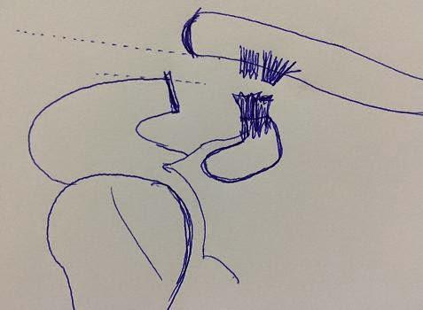 Luxación acromioclavicular. Rotura de ligamentos conoide y trapezoide