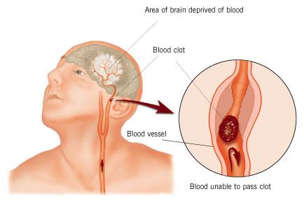 Cerebrovascular Accident ~ Dentistry and Medicine