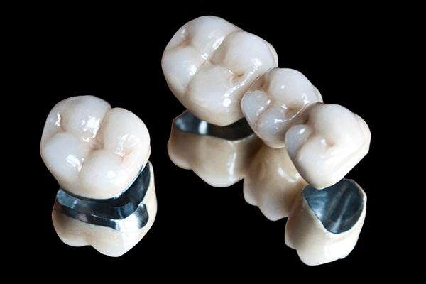 Newport Beach Dental Crowns