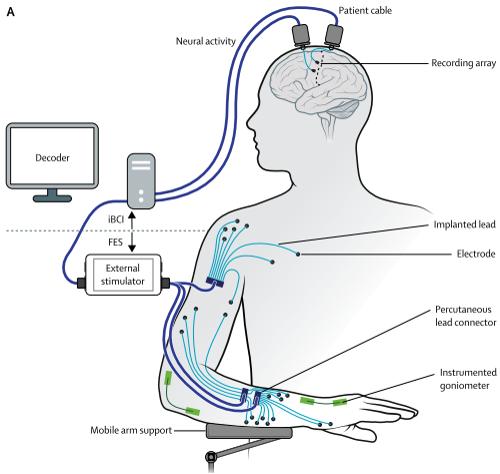 《Wen-Jing的科學文獻報告》: 腦機介面,神經休克及呼吸抑 制,像碗口大!該病死亡率很高…… - 每日頭條