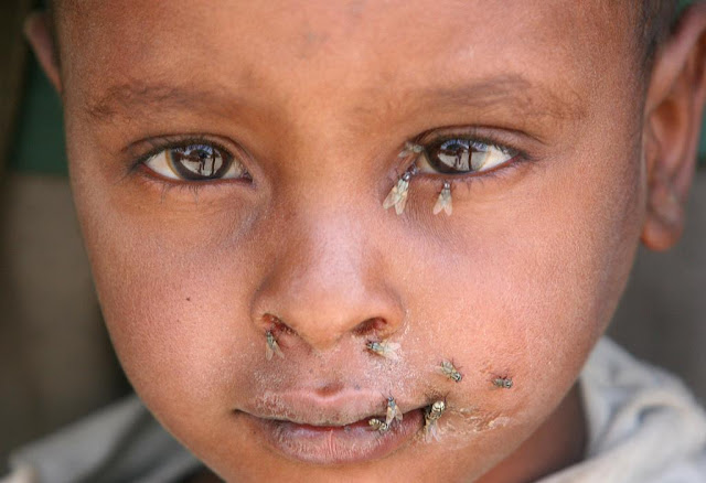 child in Nepal with trachoma flies and poor sanitation