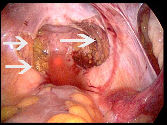 endometriosis - photo #5