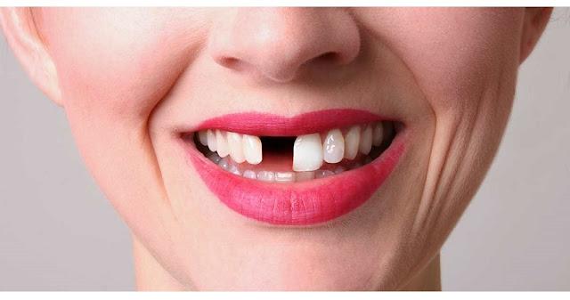 Curiosidades sobre os dentes
