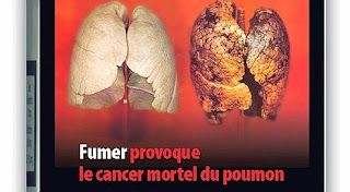 Cancer : Ne pas fumer