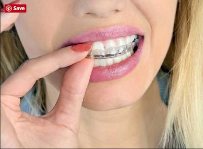 Wie viel weißer werden die Zähne beim Bleichen, und was muss man beachten?