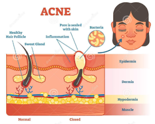 Face Epidermis Issues