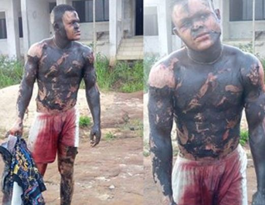 Man Gets Badly Burnt While Trying To Steal From A Transformer (Graphic Photos)