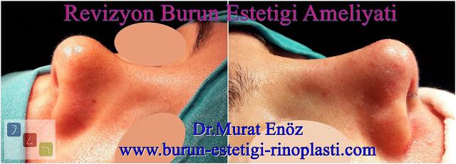 Revizyon burun estetiği - Revizyon burun estetiği ameliyatı İstanbul - Revizyon rinoplasti İstanbul