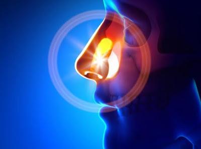 Gotas para Sinusite e Rinite de Jaraguá do Sul – Tratamento e Atendimento agora na região de Florianópolis (48) 3094-5746