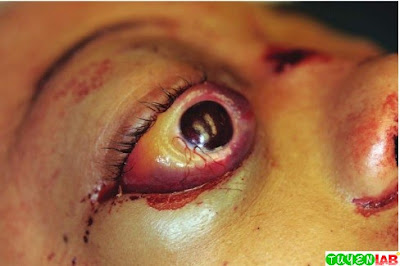 Traumatic Exophthalmos
