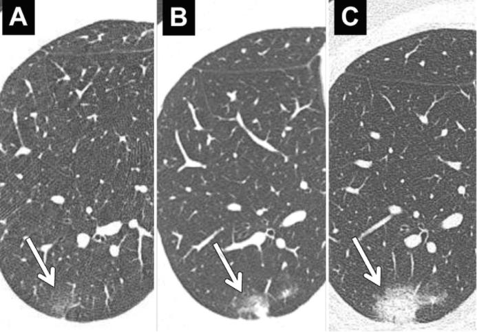 Cancerul pulmonar: Simptome, cauze, tratament, prognostic   dieta-daneza.ro
