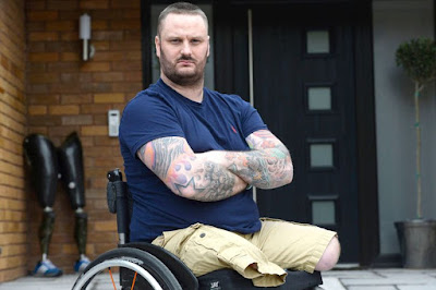 UK Amputee Forced to Wait For Limbs--Third Time