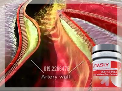 Tasly ubat jantung