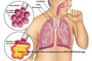 Kelainan Jalan Nafas dan Pernafasan