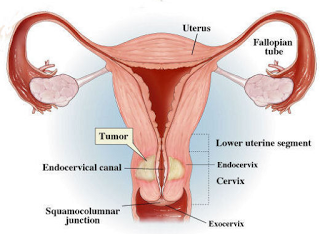 Bahaya kista ovarium pada wanita hamil