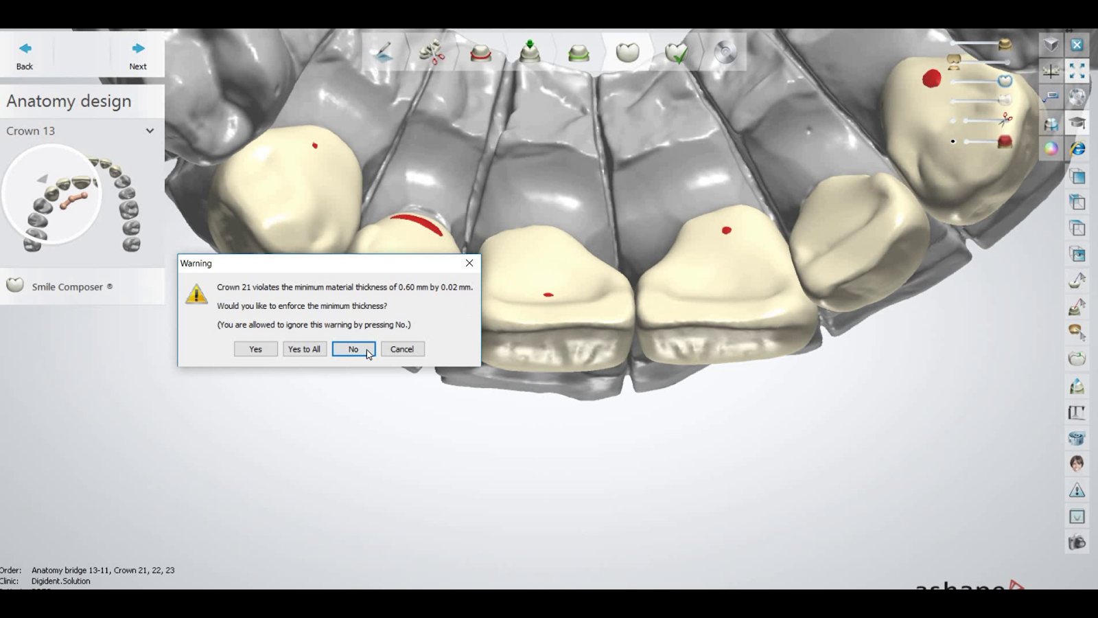enforce minimum thickness yes or no in 3shape dental designer