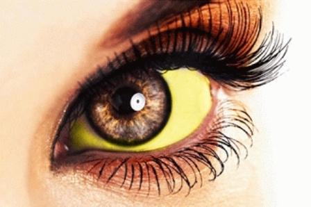 Cara Memutihkan Mata Kuning Secara Alami Dan Cepat
