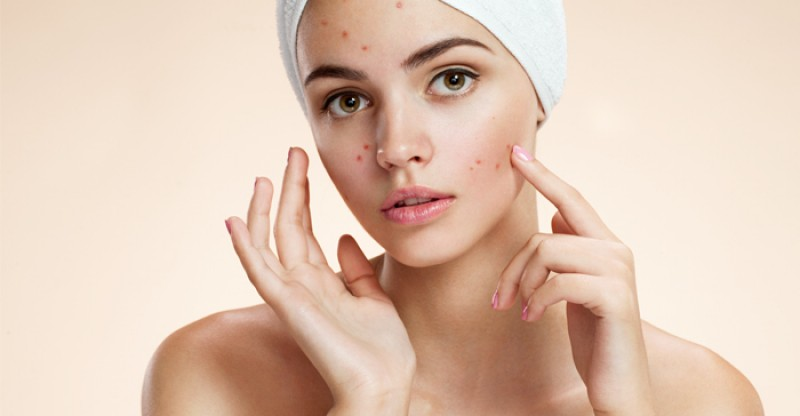 Common Acne Prone Skin Mistakes to Avoid