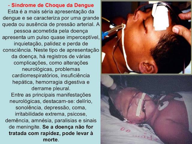 Síndrome de Choque da Dengue